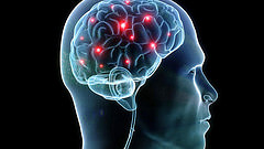 brain photo. Credit to aboutmodafinil.com